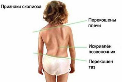 Сколиоз у детей - причины, признаки и лечение детских сколиозов