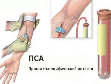 Анализ крови на ПСА и расшифровка результатов