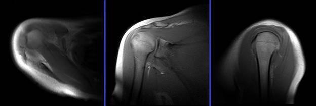 Артрография - что за диагностика и при каких патологиях эффективна