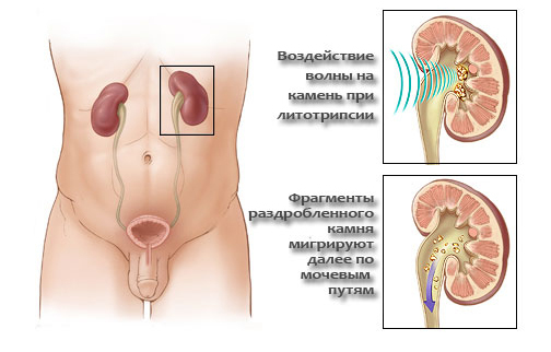 Контактная уретеролитотрипсия – методика дробления камней в почках