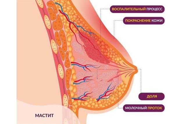Причины и симптомы мастита - лечение и профилактика мастита у кормящих