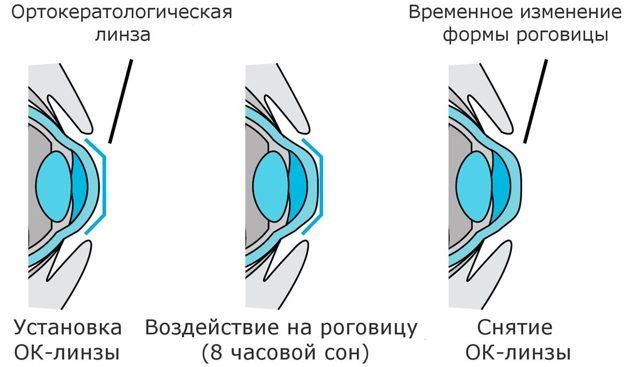 Линзы и очки при кератоконусе - показания и правильный подбор