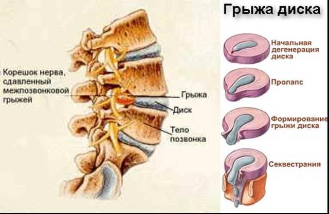 Лечение и удаление грыжи позвоночника лазером – обзор предложений и цен в  Москве и Санкт-Петербурге