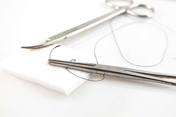 Классификация шовного материала в хирургии – виды хирургических нитей, кетгута
