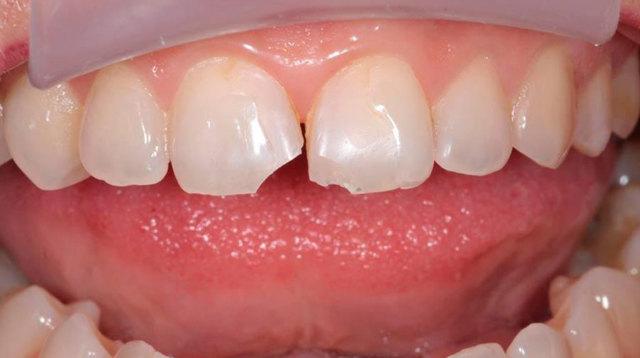Почему крошатся зубы у взрослых - основные причины крошения зубов