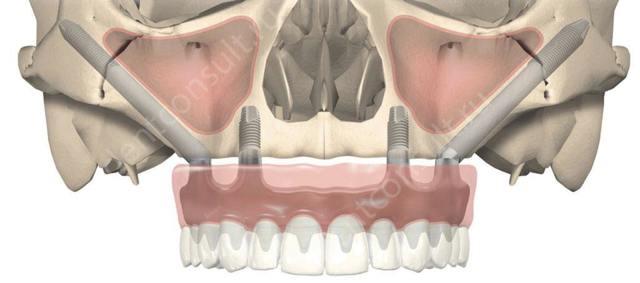 Пересадка кости - показания, этапы операции костной пластики