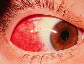 Диагностика и лечение склерита – показания к операции при склерите