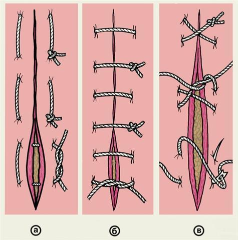 Самые распространенные способы наложения хирургических швов