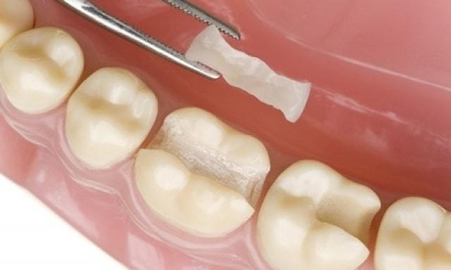 Виды стоматологических цементов для фиксации несъемных зубных протезов, коронок
