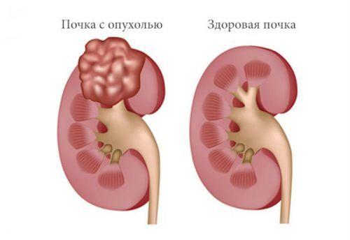 Нефробластома – симптоматика злокачественной опухоли почек у детей