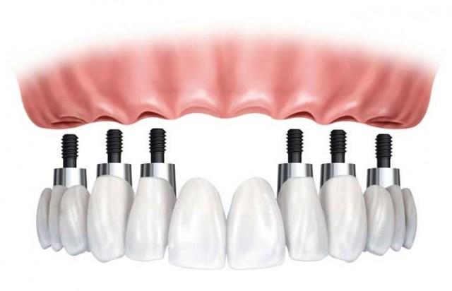 Что лучше протезирование зубов или имплантация – плюсы и минусы протезирования и имплантации зубов