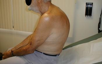 Кифоз: классификация заболевания и методики лечения