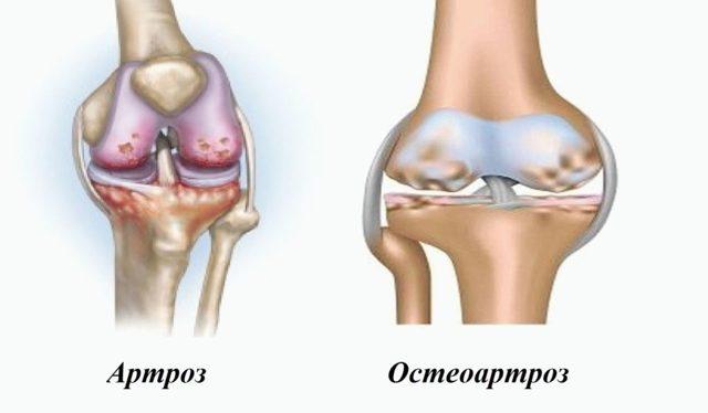 Разрыв межберцового синдесмоза – симптомы и лечение