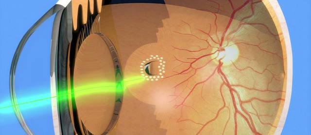 Лазерная коагуляция сетчатки – показания к операции и виды