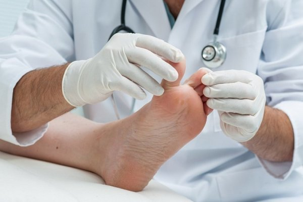 Панариций пальцев на руках и ногах – как быстро вылечить воспаление и избежать осложнений