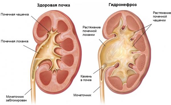 Диагностика и лечение гидронефроза – когда необходима операция?