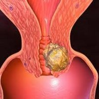 Классификация рака шейки матки – стадии, виды, формы рака шейки матки