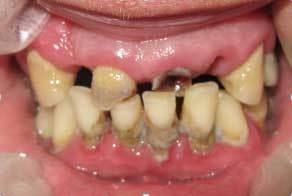 Лечение травматической перегрузки зубов – результаты методов лечения перегрузки пародонта