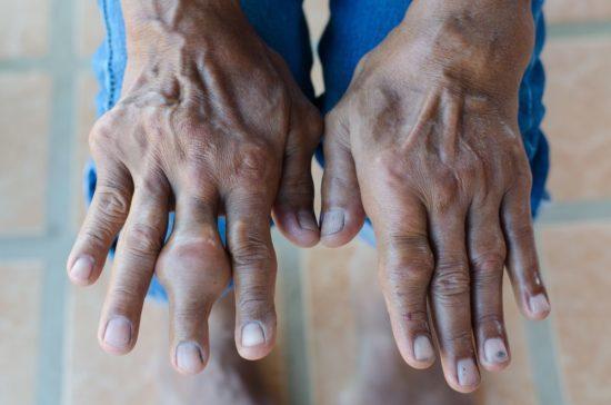 Хирургическое лечение подагры и её осложнений – удаление подагрических тофусов