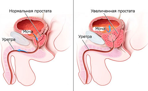 Все симптомы задержки мочи и острого состояния – причины ишурии, анурии у мужчин и женщин