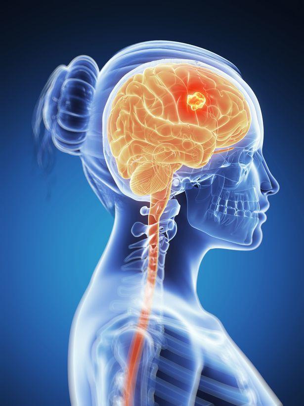 Первые признаки и симптомы рака головного мозга – когда бить тревогу?
