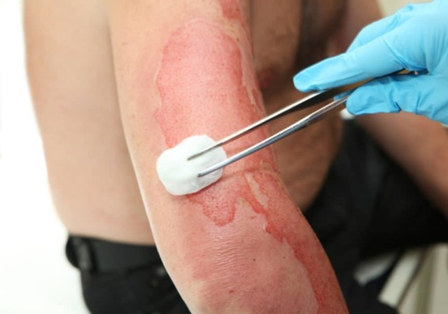 Ожоговый шок – патогенез, степени тяжести заболевания, лечение и профилактика