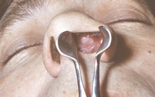 Симптомы полипов в носу – фото, диагностика и причины полипов в носу