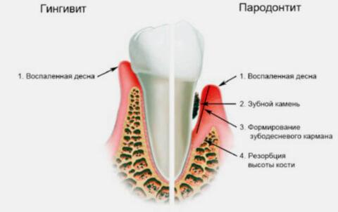 Классификация гингивита – признаки и симптомы, причины гингивита