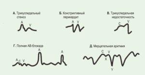 Как выполняется флебография – подготовка к исследованию и этапы выполнения