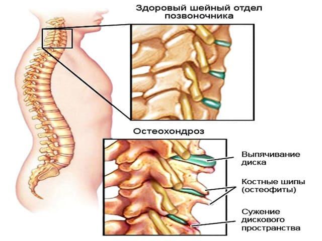 Причины сколиоза позвоночника – как определить и чем опасен сколиоз?
