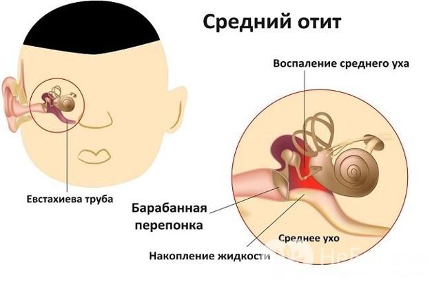 Средний отит – причины, симптомы острого и хронического среднего отита