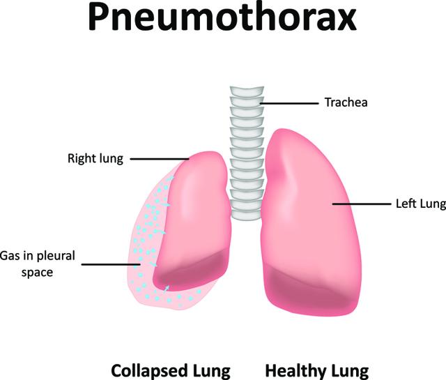 Пневмоторакс – симптомы, требующие неотложной медицинской помощи