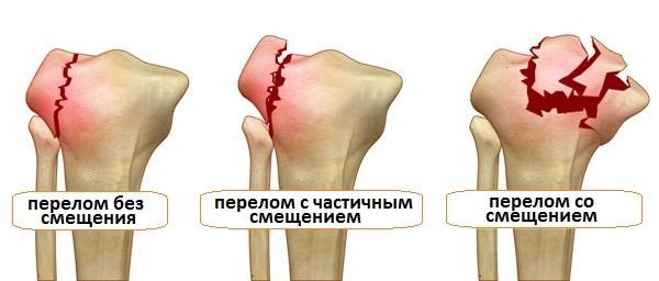 Симптомы перелома костей – абсолютные и вероятные признаки закрытого, открытого перелома