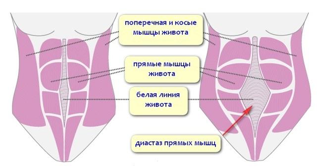 Грыжа белой линии живота – особенности течения заболевания и способы лечения