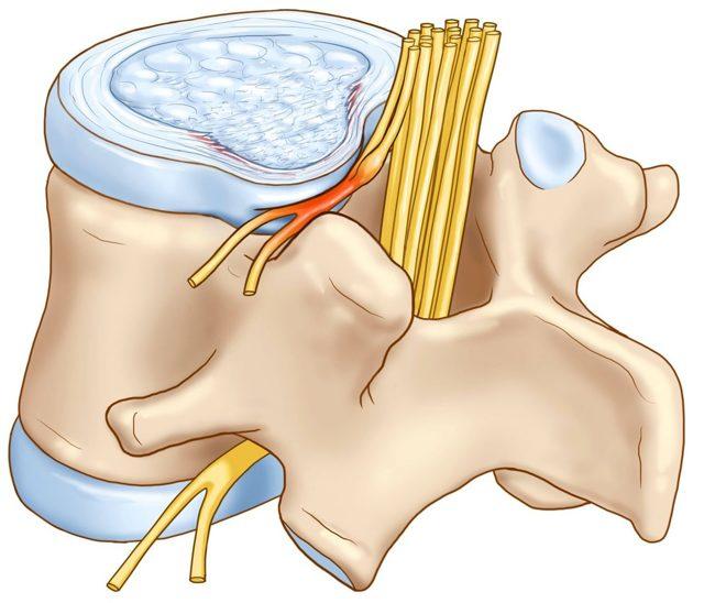 Травма шейного отдела позвоночника - методы лечения и профилактики