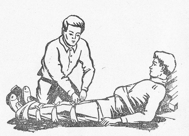 Что такое типичные переломы костей у человека – места типичных переломов и профилактика их повреждений