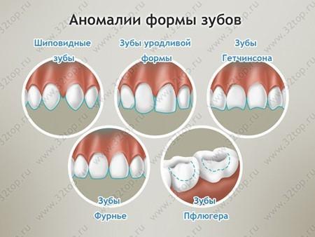 Гипоплазия зубной эмали наследуется - риски гипоплазии эмали