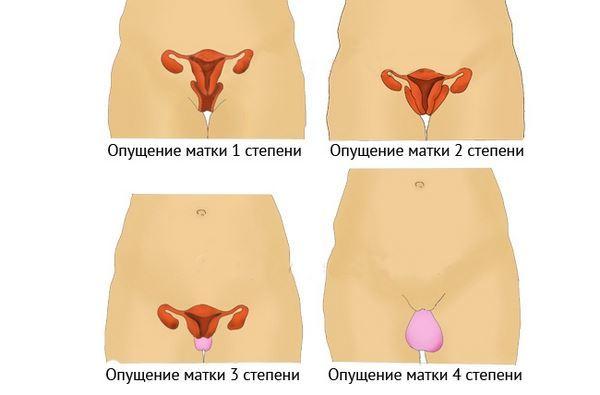 Причины и симптомы опущения матки и влагалища – диагностика выпадения матки и влагалища