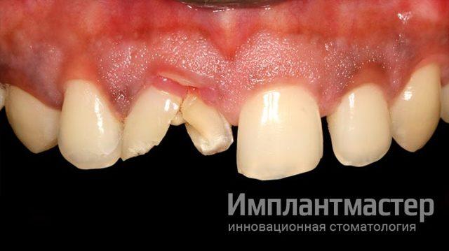 Виды имплантации зубов с немедленной нагрузкой - техника выполнения и блестящий результат