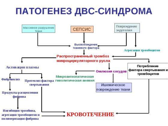 Фазы, стадии ДВС синдрома - причины и симптомы ДВС синдрома