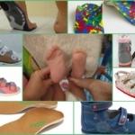 Нюансы выбора ортопедической обуви для детей с вальгусной деформацией стоп