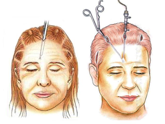 Лифтинг лица и кожи тела в пластической хирургии – популярные виды лифтинга