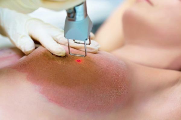Удаление растяжек лазером или операционно - есть ли шанс сделать кожу ровной?