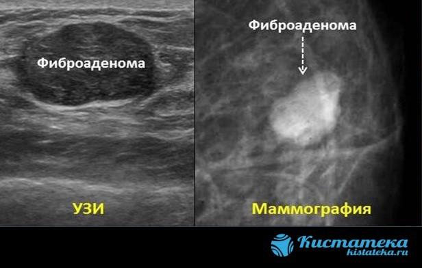Маммография – необходимое каждой женщине обследование молочных желез