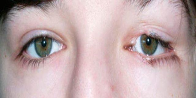 Как выглядит колобома глаза – виды, причины и лечение дефекта
