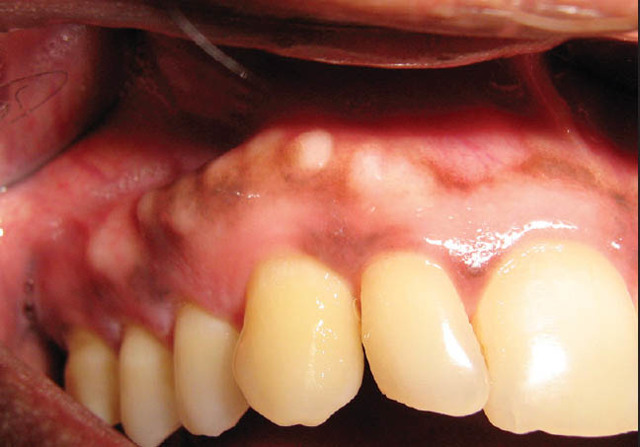 Экзостоз зуба или челюсти - причины, лечение, показания к операции