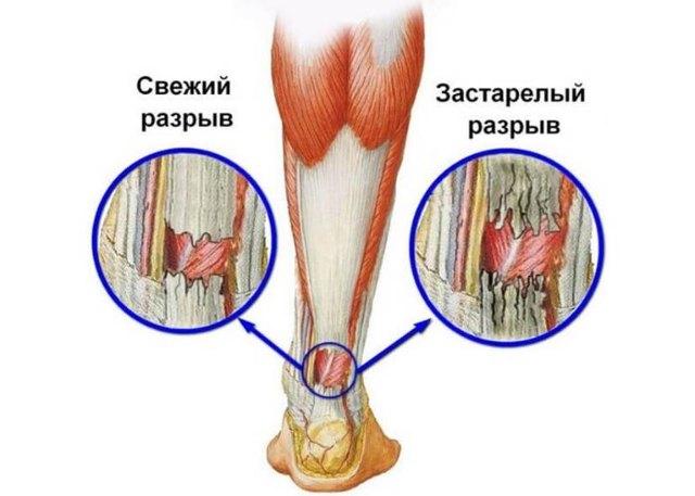 Операция в лечении ахиллова сухожилия - показания, реабилитация