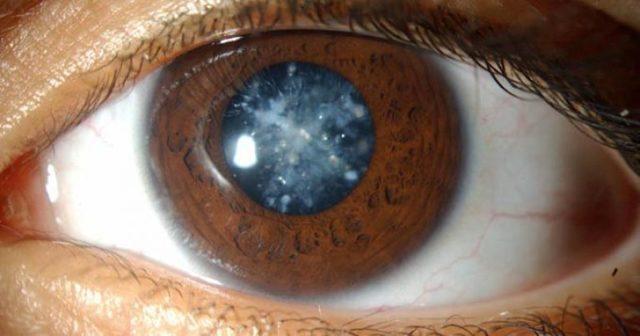 Современные методы лечения врожденной катаракты глаз у детей и взрослых