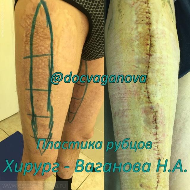 Виды реконструктивно-восстановительных операций после ожогов кожи лица и тела