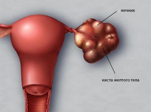 Лечение кист яичника – когда необходима операция по удалению кисты на яичнике?